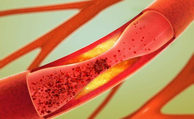 Venous thromboembolism blood clot.