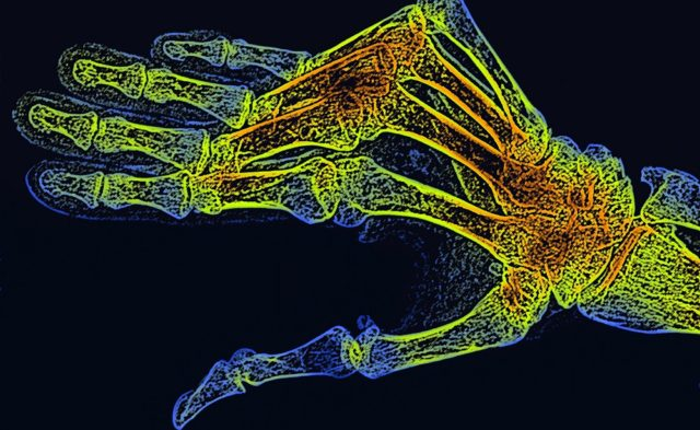 x-ray of RA in hand