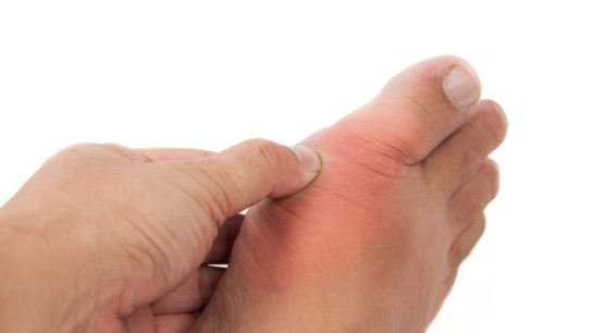 person pressing on foot with gout