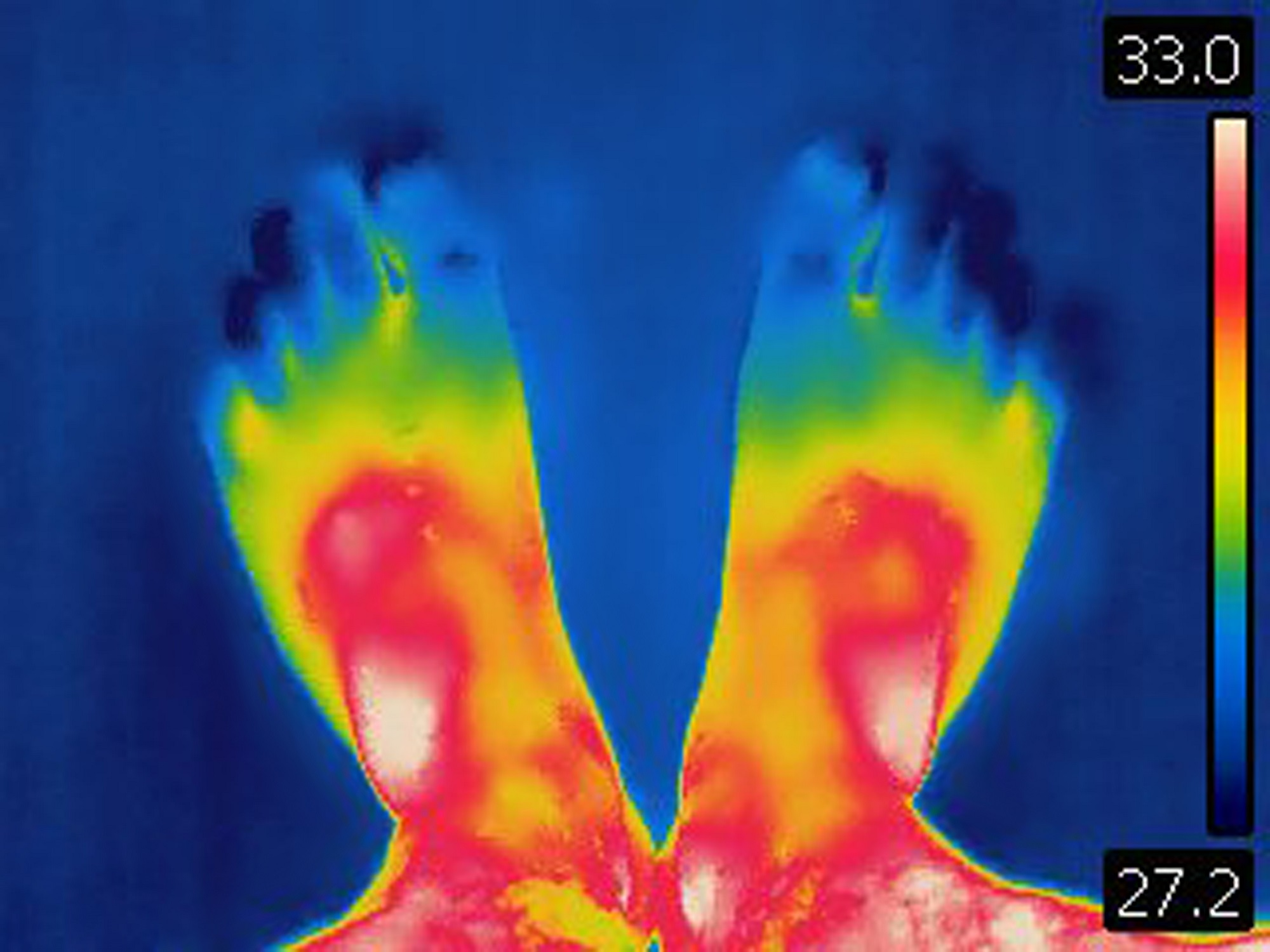 Thyroid Syndromes - Rheumatology Advisor