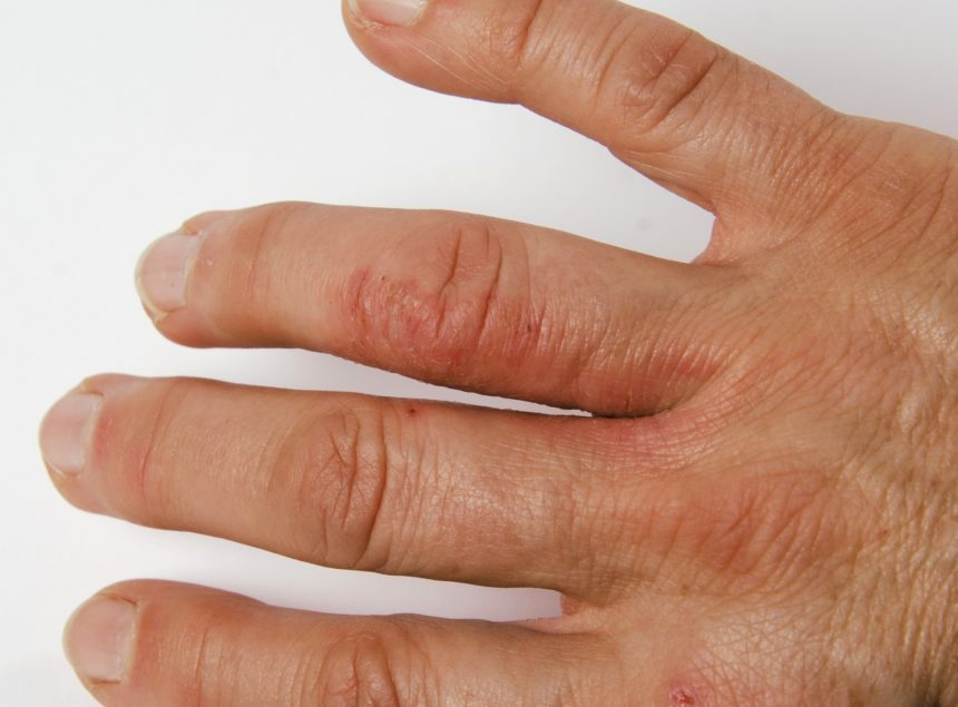 Psoriatic Arthritis on Hand