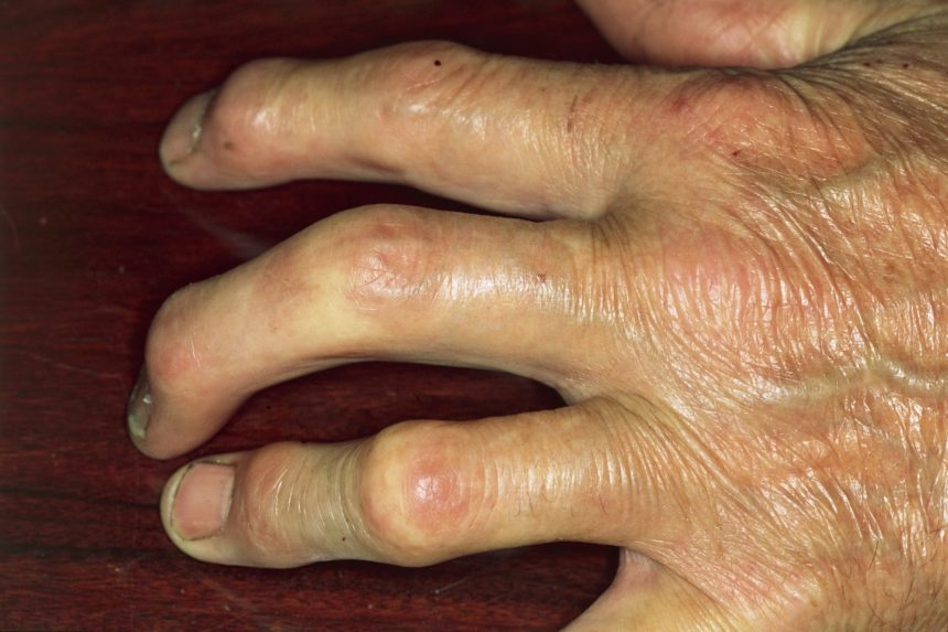 psoriatic arthritis of hand