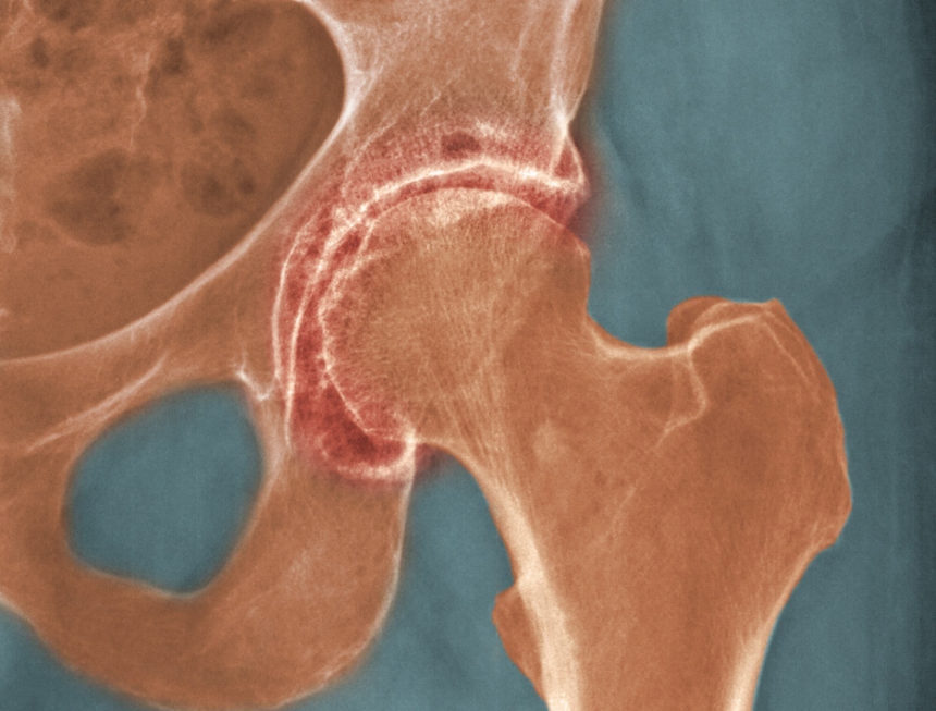 severe degenerative arthritis