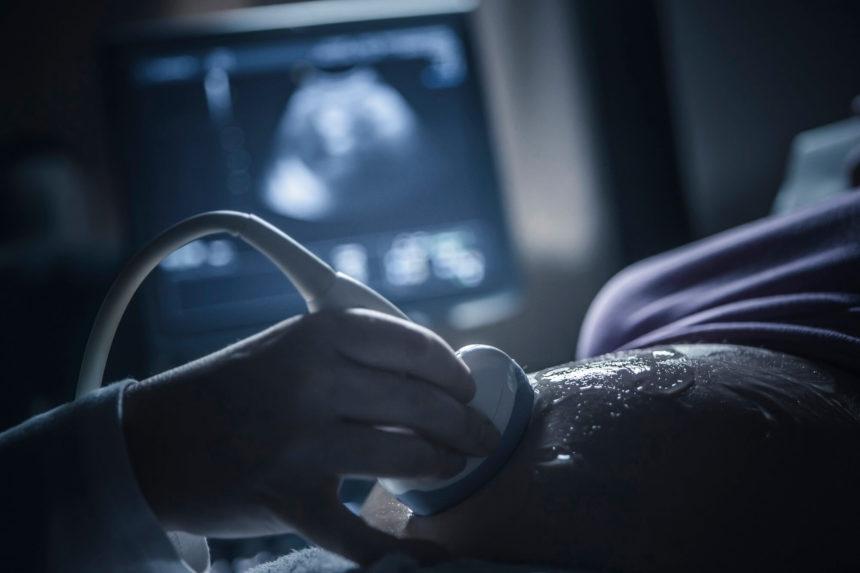 Pregnant woman having sonogram, ultrasound