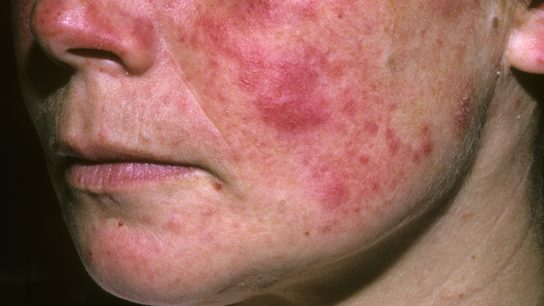 Woman with systemic lupus erythematosus