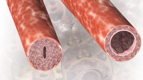 blood vessels inflammation