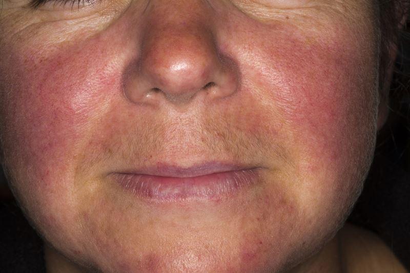 الذئبة Lupus هي أحد أمراض المناعة الذاتية الشفاء الأخضر
