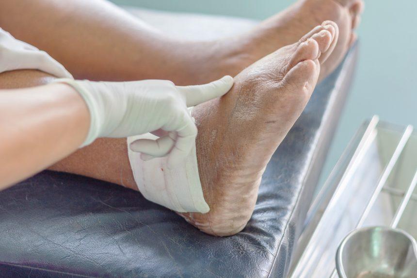 Gout & Kidney Disease: What's the Link? - Rheumatology Advisor