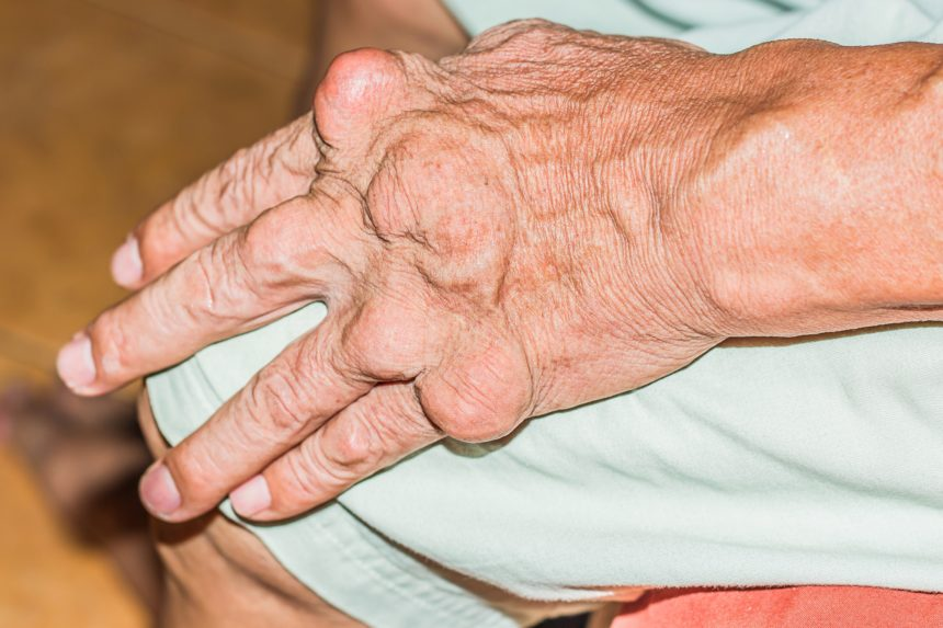 Target Serum Urate And Remission Difficult To Achieve In Severe Gout