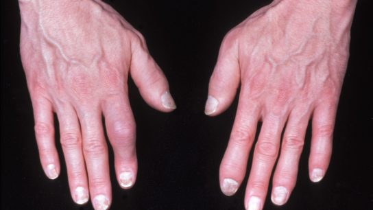 Hands with PsA