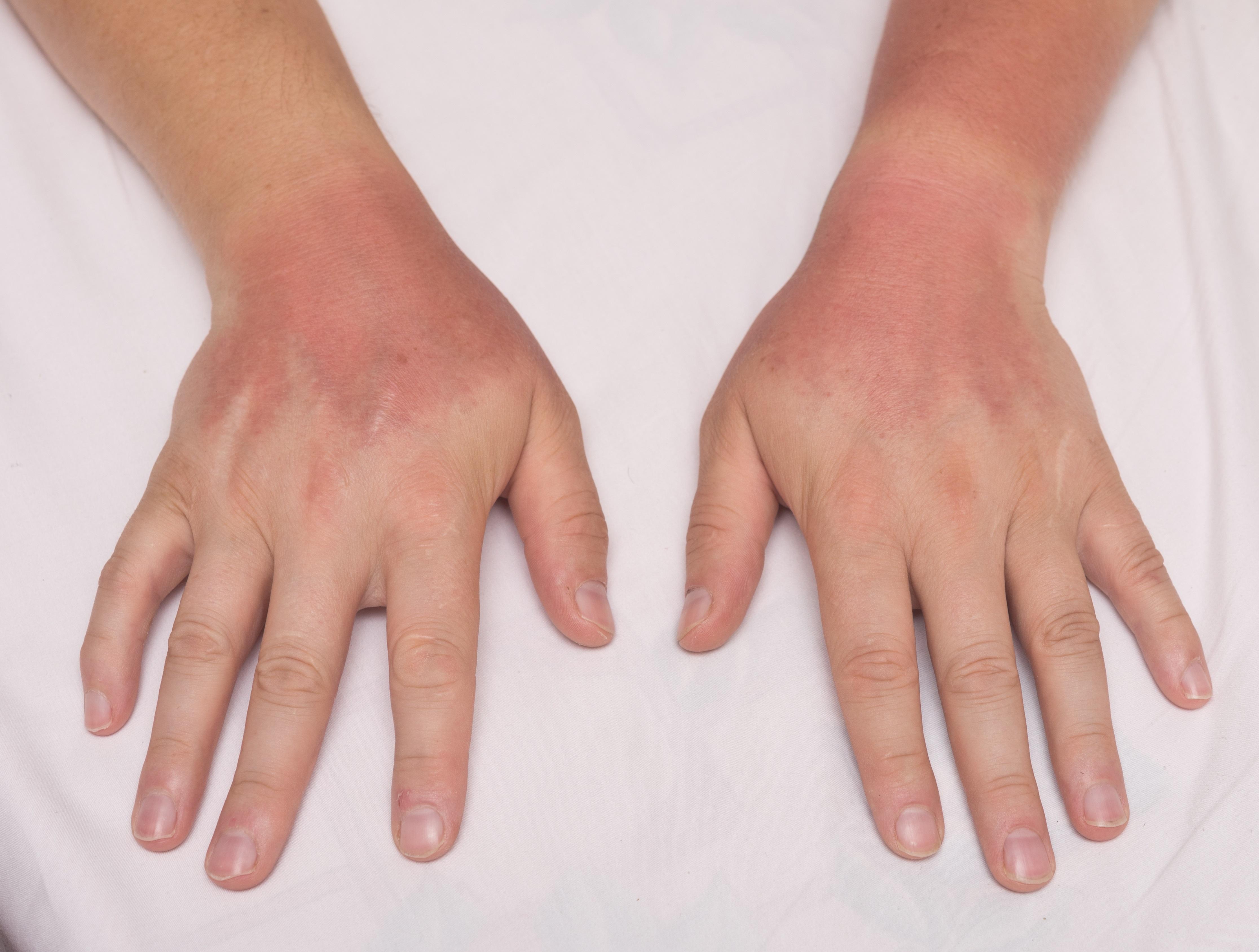 Rheumatoid Arthritis Medications Sun Exposure Rheumatology Advisor