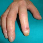 Systemic sclerosis, digital ulcers