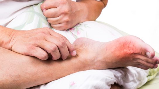 Gout inflammation on foot