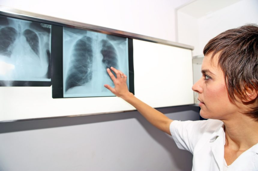 Doctor looks at X-ray images of lungs
