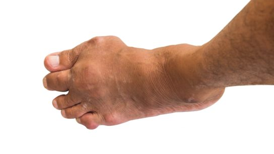 Gout of the foot