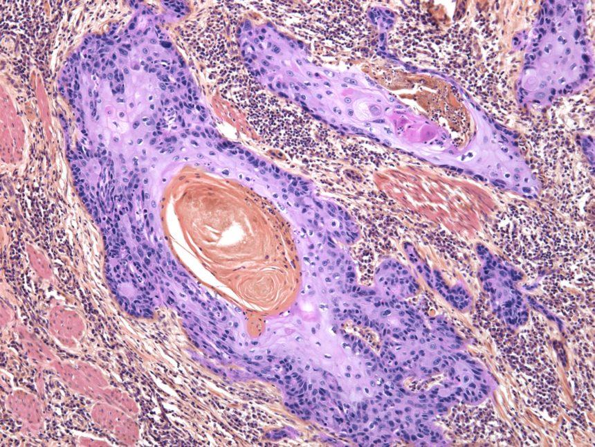 Skin cancer cells