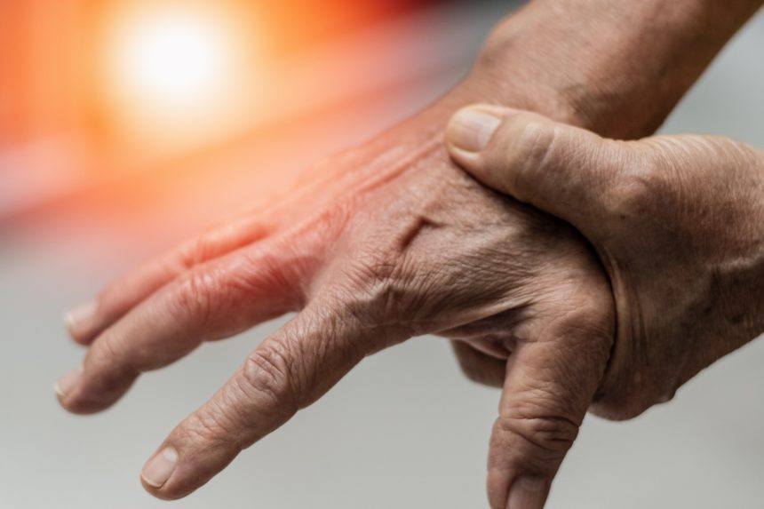 Rheumatoid Arthritis of the hand