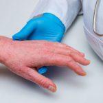 Psoriasis on patients hand