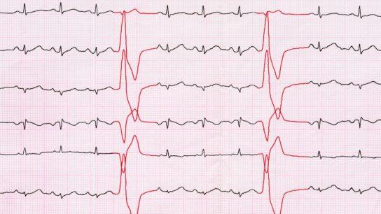 Tape ECG with ventricular premature beats