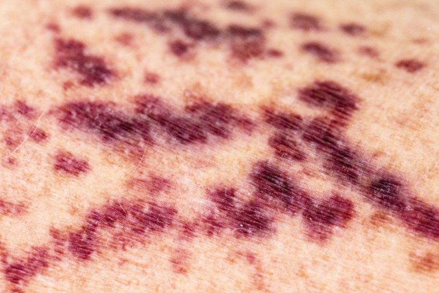 Purpura, vasculitis, or broken blood vessels on human skin