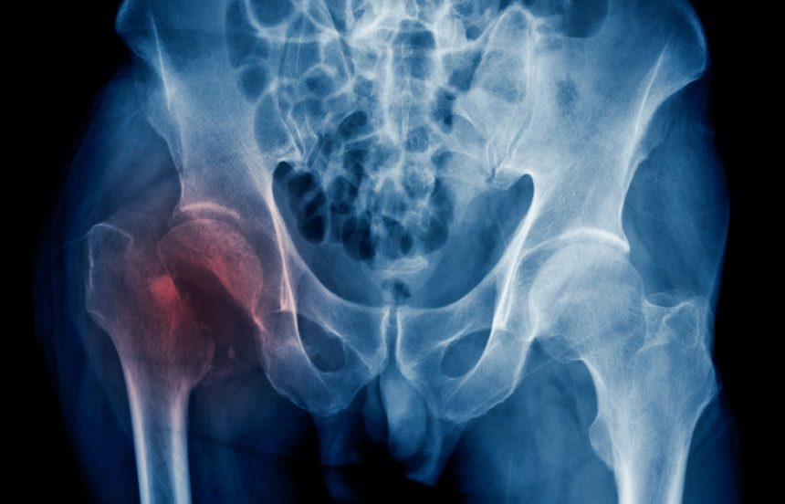 xray of hip fracture