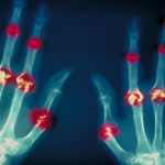 Color enhanced X-ray of hands afflicted with rheumatoid arthritis