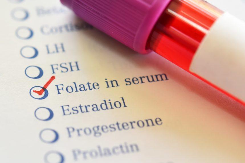serum folate blood test