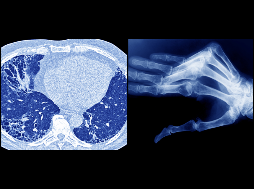 xray image of pneumonia and a hand with rheumatoid arthritis