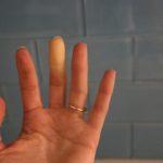 Raynaud's Syndrome Phenomena Adult Hand