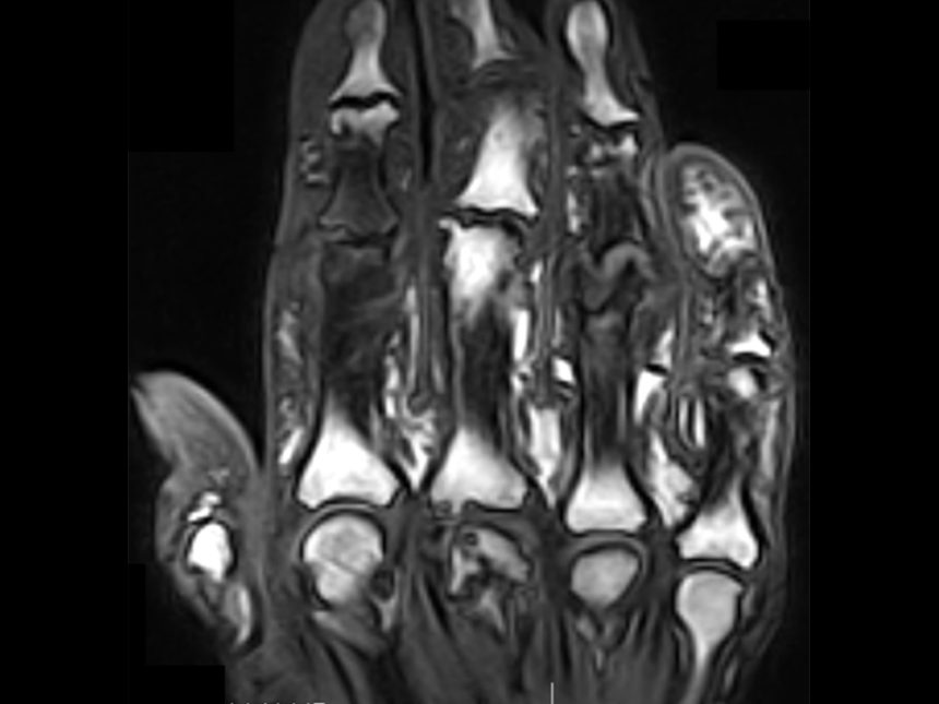 synovitis, arthritis