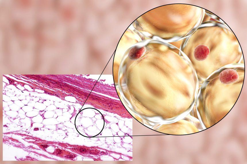 fat cells, leptin