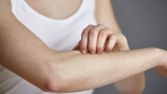 young woman scratching forearm, skin irritation, itch, inflammation