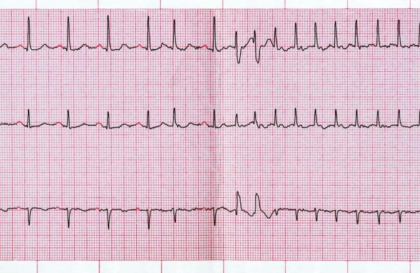 ECG, echocardiogram, atrial fibrillation