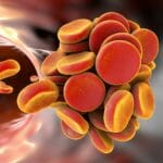 Thromboembol in blood vessel