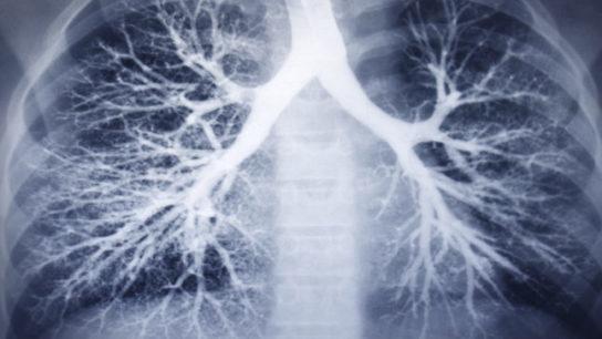 copd-pulmonology-xray-ca0416